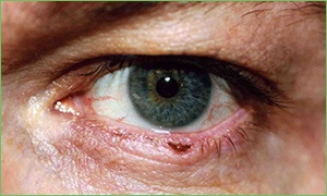 Skin Cancer on the Eyelid